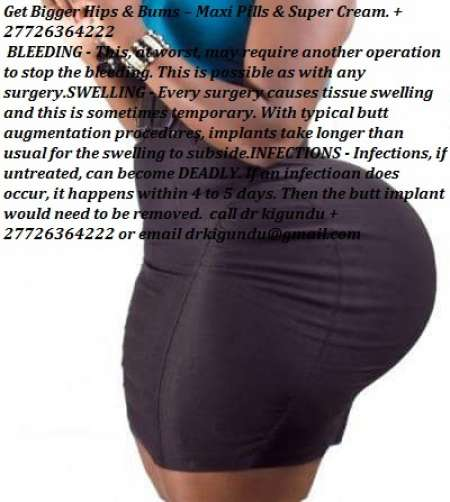 Get Bigger Hips & Bums – Maxi Pills & Super Cream. +27726364222